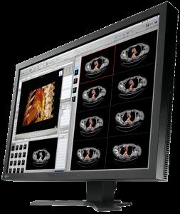 realizzazione impianti medicali, rivendita monitor medicali